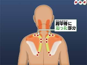 [口コミ]整体で慢性肩こり、腰痛がスッキリしました。←福岡市城南区長尾の患者さま。